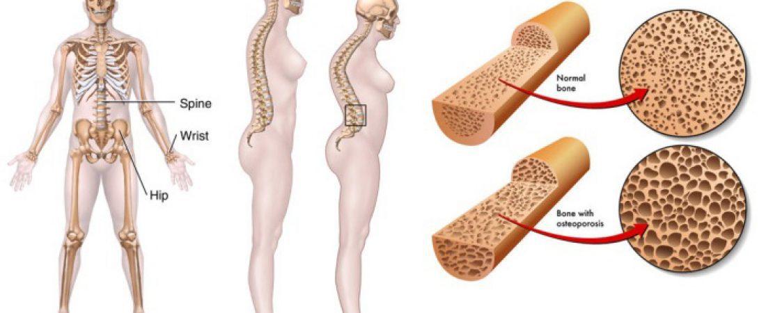 Можно ли умереть от остеопороза